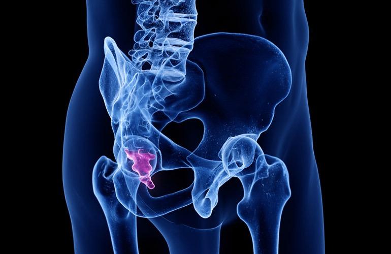 treatment of tail pain | درد دنبالچه
