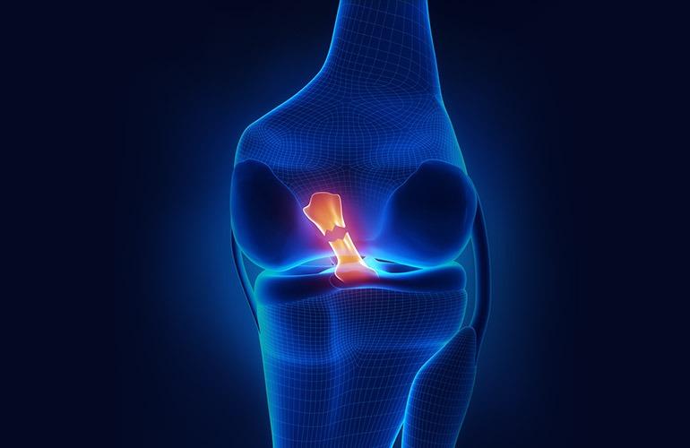 cruciate ligament rupture surgery | جراحی جراحی پارگی رباط صلیبی زانو